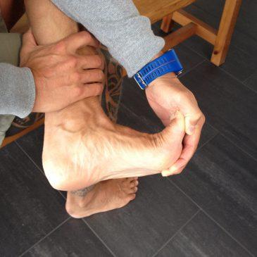 Laufsport und Plantar Fasciitis – Wie werde ich schnell wieder fit?